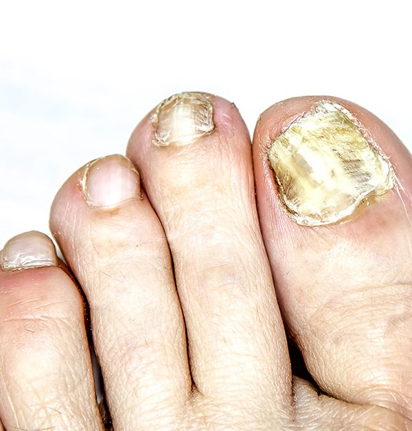 Fungal Nail Disease on the Leg
