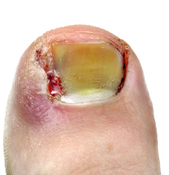 21466798 - ingrown toenail
